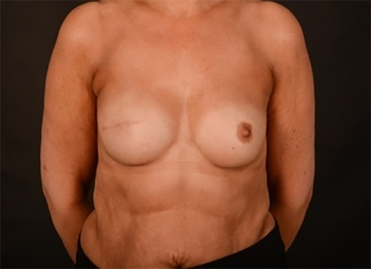 which is true of women who have had a unilateral mastectomy?-1