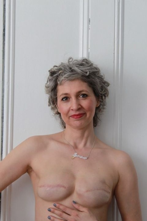 which is true of women who have had a unilateral mastectomy?-3